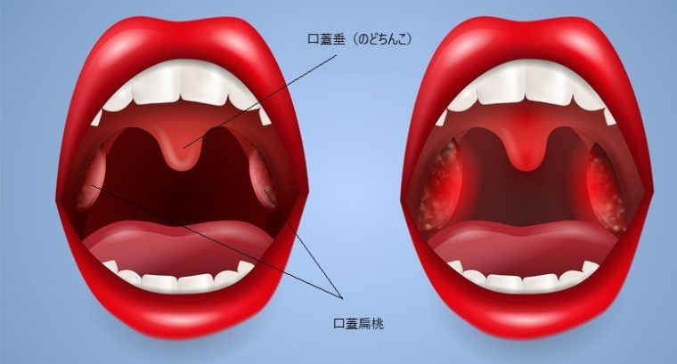 し 喉 ー 手術 に っ